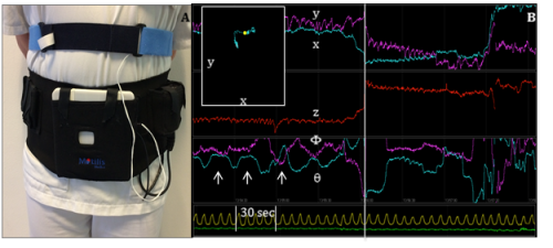 3D-Transit system. A. Sensors in the detector plate register electromagnetic signals from the ingested capsule. A chest worn respiration belt registers artifacts due to respiration. B. Graphs displaying position (x, y, z) and orientation (Φ, θ) of the capsule when passing the GI tract. Upper left window shows capsule position in x-y direction according to the external monitor. Arrows mark the contraction frequency of 3 per minute, characteristic of the stomach. Vertical line marks the shift in capsule position from stomach to small intestine. Yellow line marks respiration. Green line marks accelerometer.